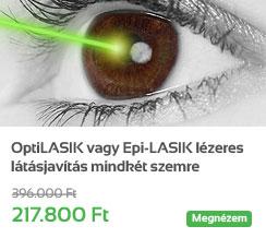 OptiLASIK vagy Epi-LASIK l�zeres l�t�sjav�t�s mindk�t szemre az Els� Pesti L�zerk�zpontban